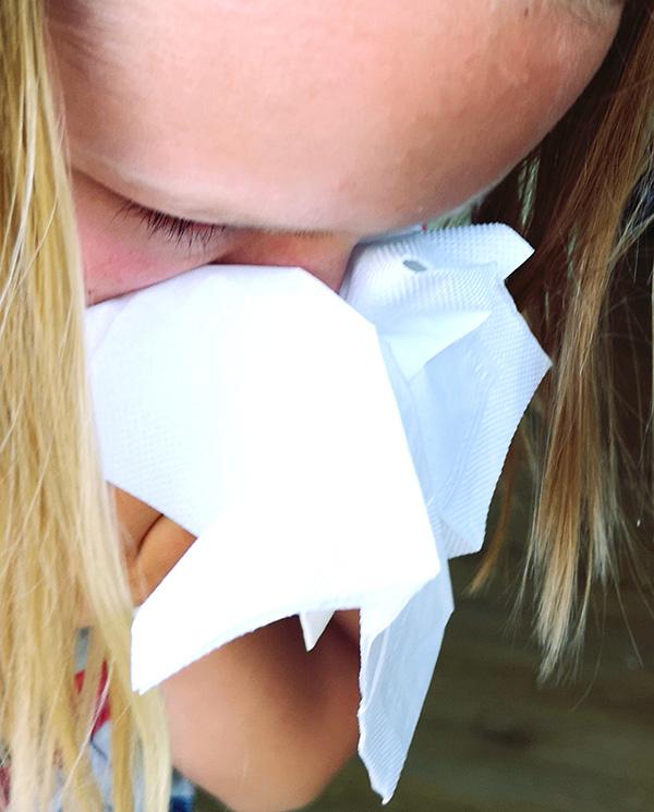 ŠIENLIGĖ – pavasarinė alergija